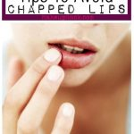 Tips To Avoid Chapped Lips