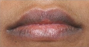 Natural-Dark-Lips