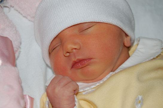 newborn baby jaundice